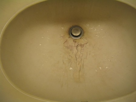 How to fix a cracked porcelain sink